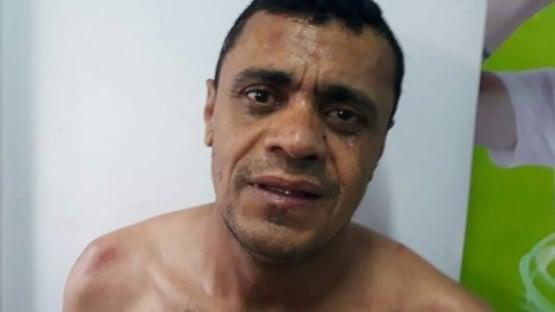 Defensoria pede transferência de Adélio para hospital psiquiátrico