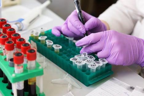 Farmacêuticas publicam documentos sobre segurança das vacinas