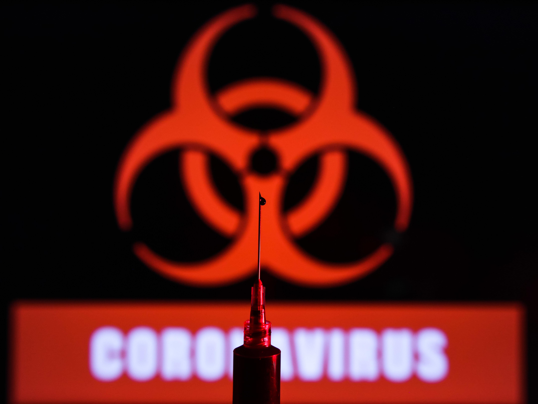 BRASIL TEM RECORDE DE 474 MORTES POR COVID-19 REGISTRADAS EM 24 HORAS